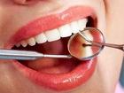 Фото в Красота и здоровье Медицинские услуги Вы можете позволить себе здоровые зубы!  в Москве 1000