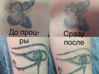 Просмотреть фотографию  Удаление татунекачественного тату и татуажа 59058087 в Новосибирске