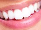Изображение в   Чтобы иметькрасивые зубы –надо ответственно в Ростове-на-Дону 2000