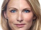 Уникальное изображение Салоны красоты Омолодить лицо простым способом, бесплатно 34838523 в Санкт-Петербурге