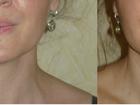 Просмотреть foto Косметологические услуги Коррекция фигуры, липокоррекция, моделирующий массаж 37352153 в Ставрополе